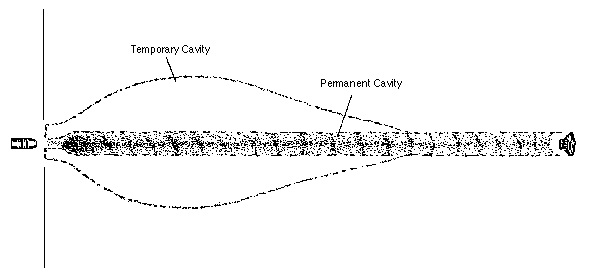 Permanent Cavity and Temporary Cavity